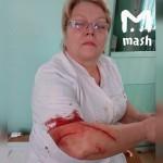 Девушка в Башкирии изрезала врача ручкой за то, что та приняла коллегу без очереди