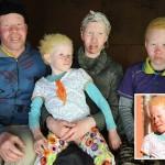 Как живется альбиносам в ЮАР