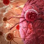 Важное открытие для борьбы с раком